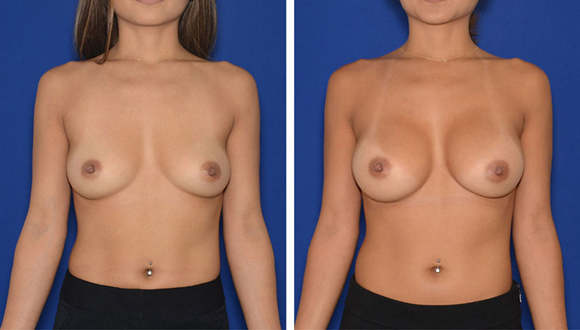 Before Breast Augmentation in Washington