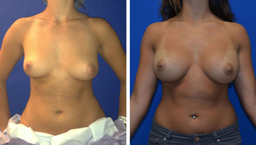 After Breast Augmentation Washington DC