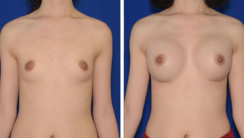 Congressional Plastic Surgery - Breast Augmentation Before & After