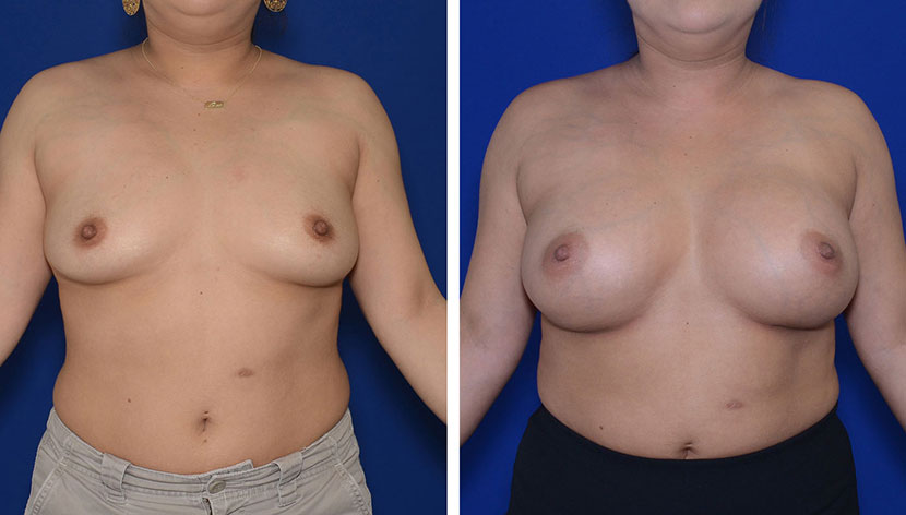 Top Breast Surgeon Washington DC