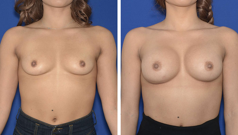 Congressional Plastic Surgery - Breast Surgery